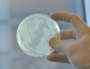 Scientists from the Wyss Institute at Harvard University and Boston University interfered with the metabolism of E. coli, rendering them weaker in the face of existing antibiotics, as reported today in Nature Biotechnology. (Photo courtesy of Wyss Institute at Harvard University)